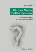 Morbus Crohn - Colitis Ulcerosa