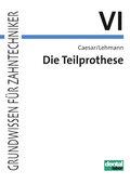 Grundwissen für Zahntechniker: Die Teilprothese; Tl.6