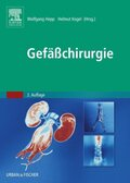 Gefäßchirurgie