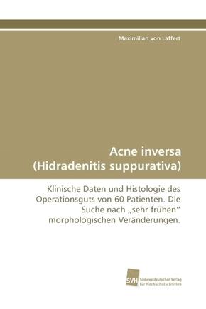 Acne inversa (Hidradenitis suppurativa)