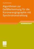 Algorithmen zur Gefäßerkennung für die Koronarangiographie mit Synchrotronstrahlung