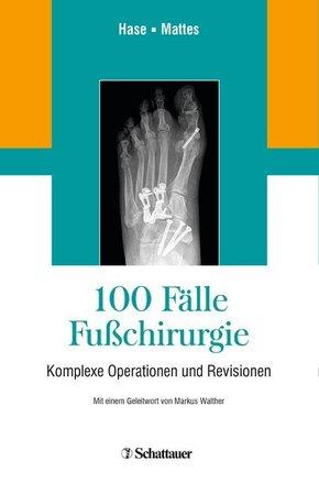 100 Fälle Fußchirurgie