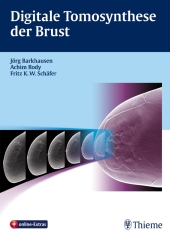 Digitale Tomosynthese der Brust