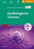 Gynäkologische Tumoren