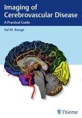 Imaging of Cerebrovascular Disease