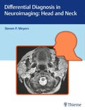 Differential Diagnosis in Neuroimaging - Head and Neck