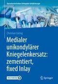 Medialer unikondylärer Kniegelenkersatz: zementiert, fixed Inlay