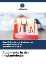 Abutments in der Implantologie