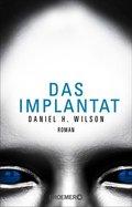 Das Implantat (eBook, ePUB)
