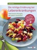 Die richtige Ernährung bei Lebererkrankungen (eBook, ePUB)